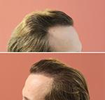 бесшовная пересадка волос